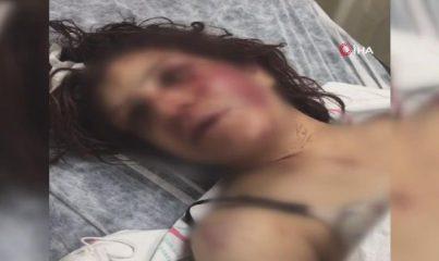 Şanlıurfa'da dehşete düşüren olay! Eşini eve kilitleyip günlerce işkence yaptı, kerpetenle ayak tırnaklarını çekti